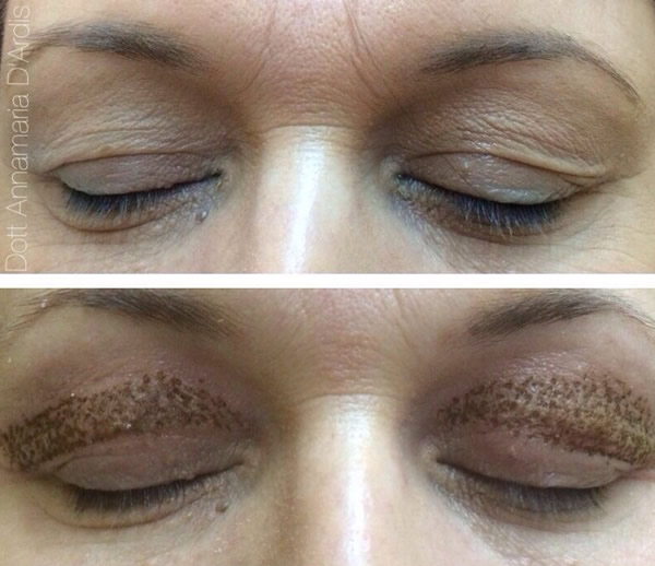 BlefaroPlasma -Treatment Before After