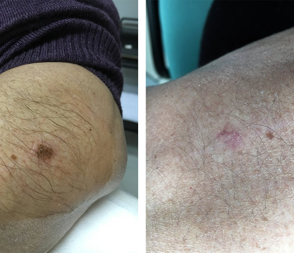 Lentigo - Before After treatment