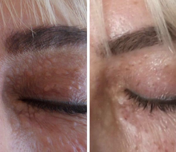 Xanthelasma - Before After treatment
