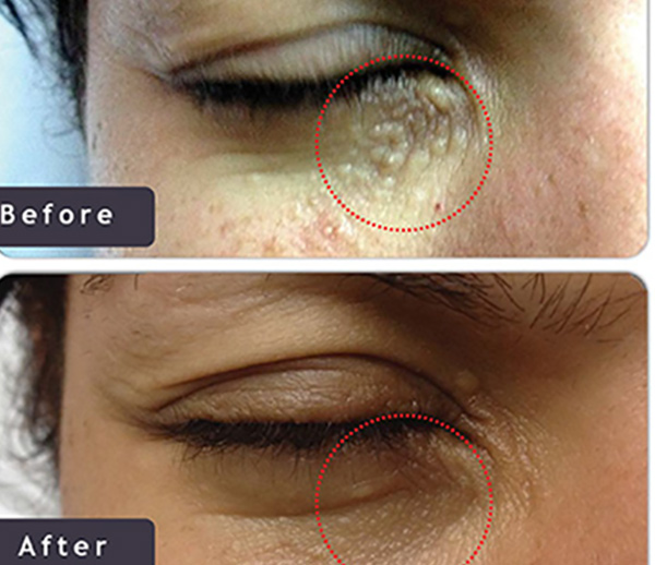 Syringomas treatment