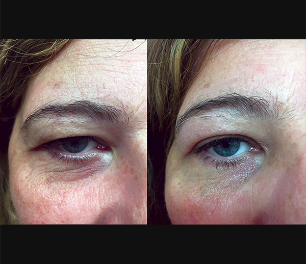Blefaroplasma ® - treatments