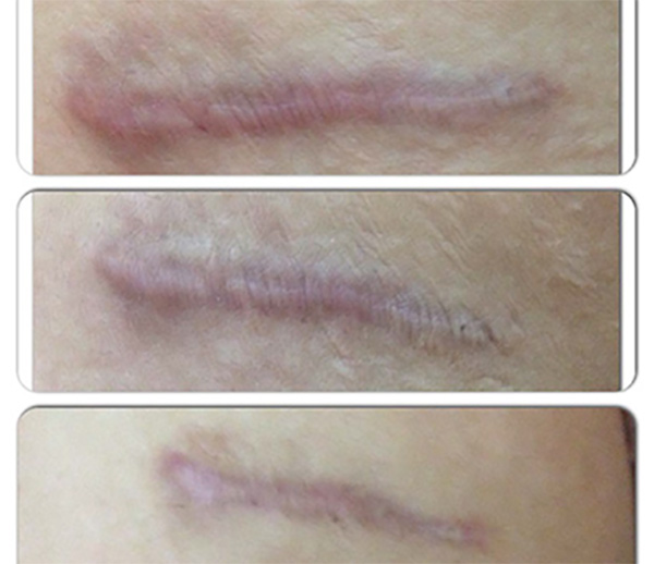 Scar treatment -trattamenti cicatrici