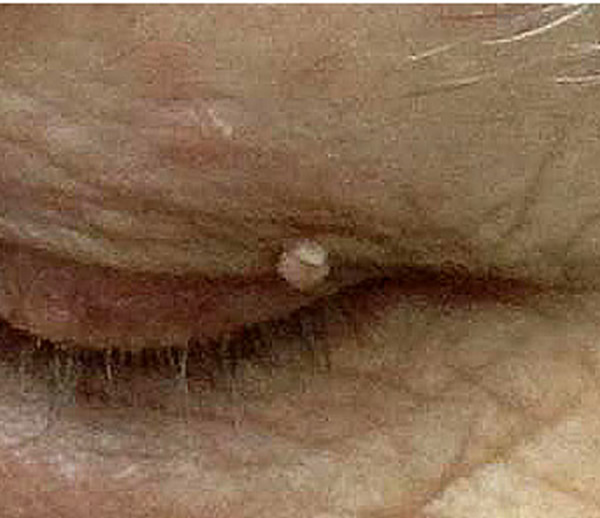 Remove Fibroma - up eye