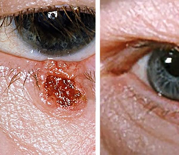 Remove Fibroma-Tumor