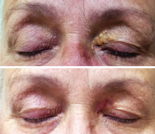 Remove Xanthelasma - up eye